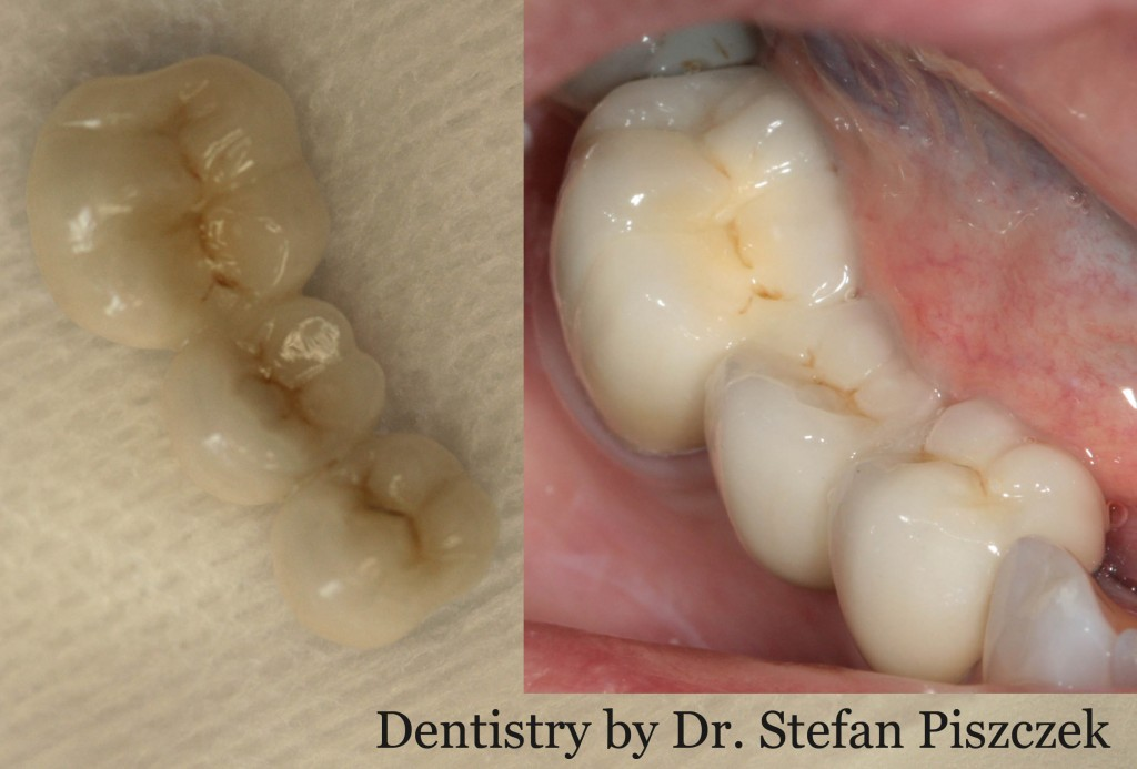 Cracovia Dental - Bridge Before and After