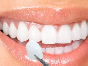 Cracovia Dental - Porcelain Veneers
