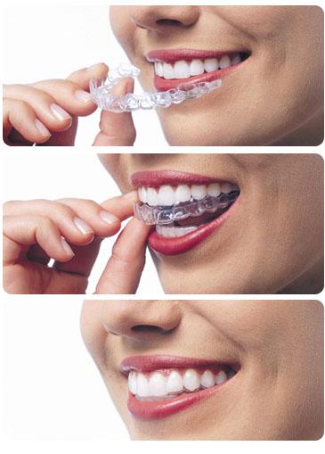 Cracovia Dental - Invisalign
