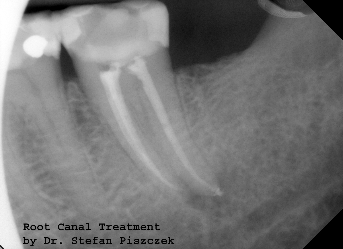 Root Canals Cracovia Dental Family And Cosmetic Dentistry